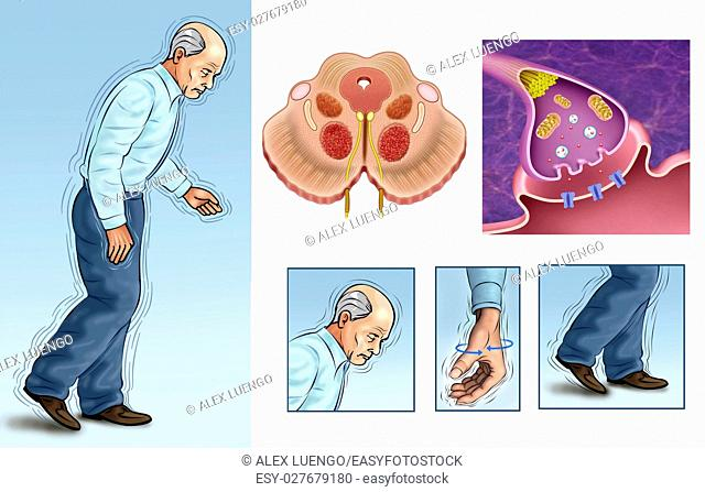 Elderly person with body tremors caused by Parkinsons disease