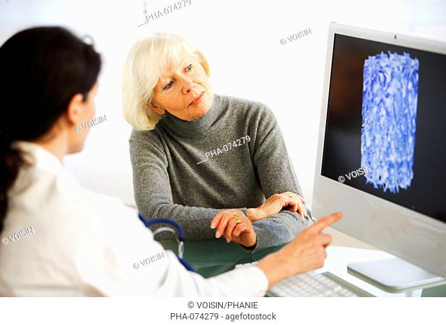 Doctor showing a patient the effect of osteoporosis on the bone structure of a vertebra