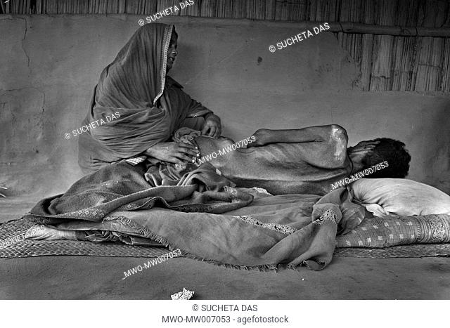 Hifot Mondol, R, 50, lies on the floor, who is caused by drinking arsenic-contaminated water and his wife Khatojan Bibi sits beside him at Kadamtala village in...