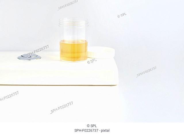 Urine sample on toilet