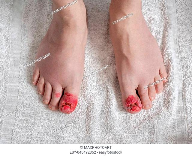 Toes after ingrown nail surgery. Convalescent appearance without nails with stitches, disinfectant red and healing
