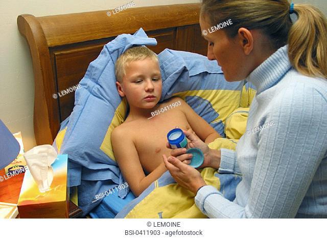 CHILD TAKING MEDICATION<BR>Models.<BR>Decongestant chest rub