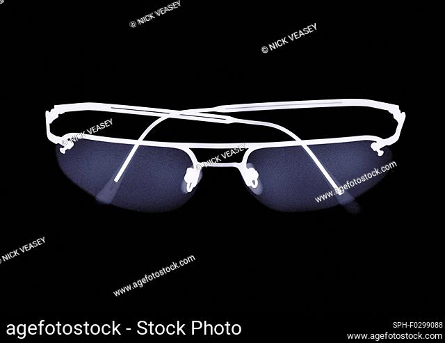 Spectacles, X-ray