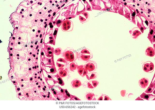 Meiosis in Lilium anther, 200 X  optical microscope, photomicrography , genetics