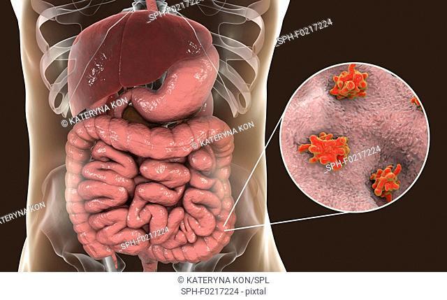 Parasitic amoeba in large intestine, illustration