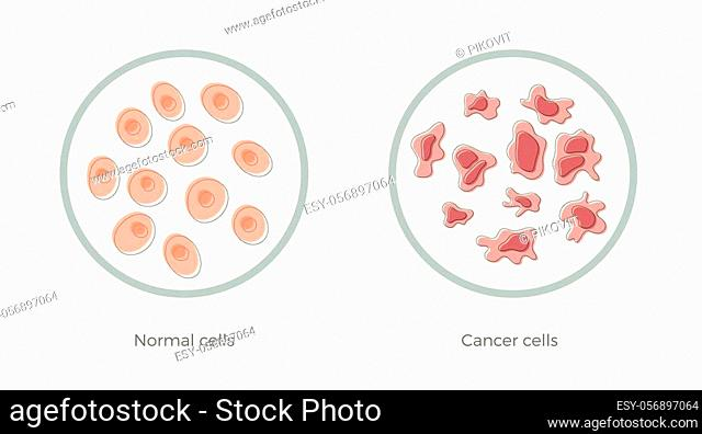 Vector isolated illustration of cell structure: normal and cancer. Medical diagram for poster, educational, science and medical use