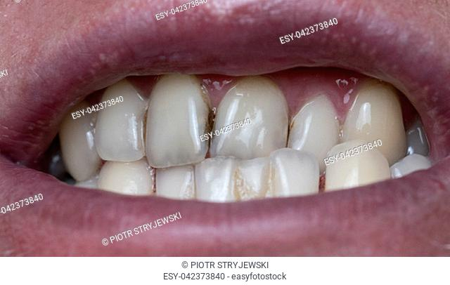 Closeup of dental plaque on man's teeth caused by coffee residual