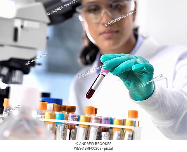 Feamle scientist preparing a blood sample for clinical testing in the laboratory
