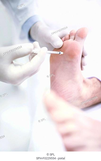 Botox injection in feet