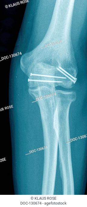 X-ray photographs of a surgical practice. fracture of the upper arm