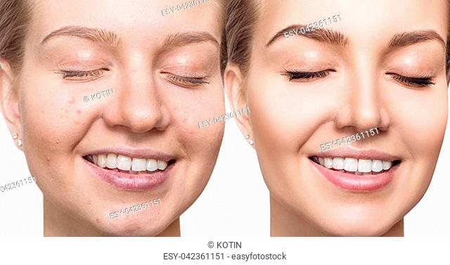 Young woman before and after skin treatment and make-up. Over white background