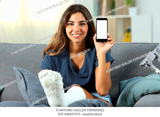 Disabled girl with plaster foot showing a blank phone screen sitting on a couch in the living room at home