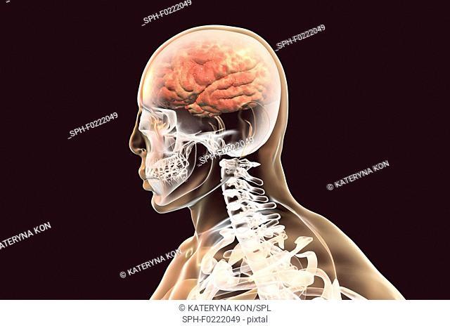 Brain with encephalitis, illustration