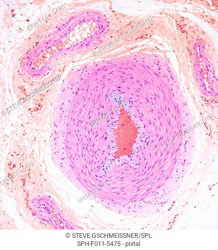 Blood vessels. Light micrograph of a section through tissue showing an artery (middle ) and a vein (top left). Surrounding the artery and vein are layers of...