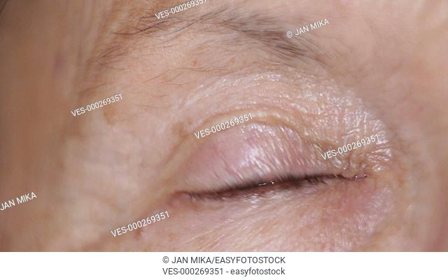 Macro of blinking eye of senior female