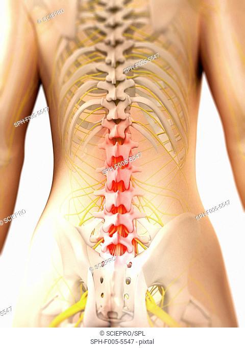 Back pain, conceptual computer artwork