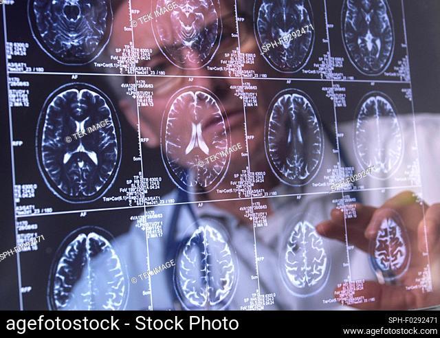 Neurology diagnosis, conceptual image