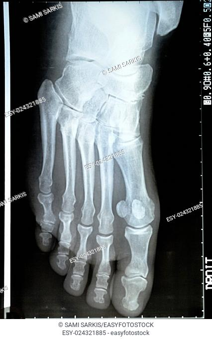 X-ray image of a mature woman's foot