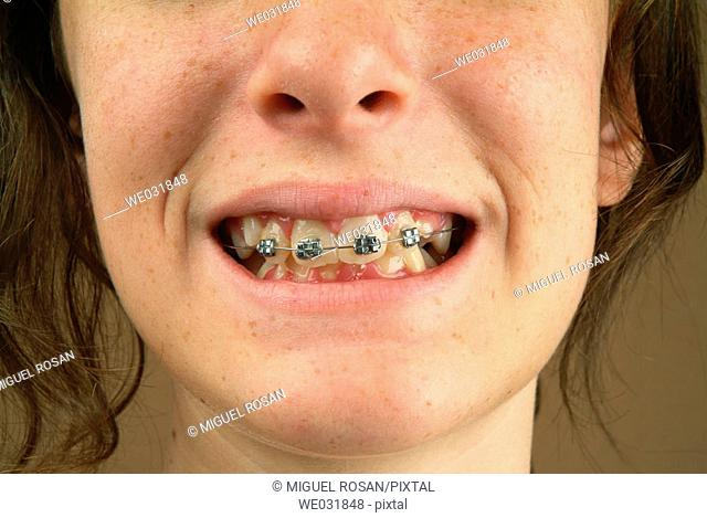 Close the mouth with braces of a teenage girl