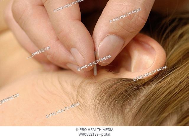 Acupuncture on the leg - BI 36 , UB 36 , V 36