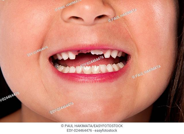 Happy open mouth with missing teeth exchanging milk tooth for adult tooth growing up, dental concept