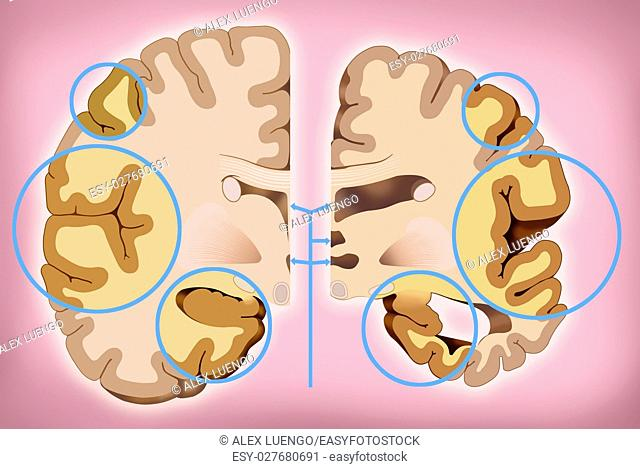 schematic illustration of human head with brain representation, two halves, one healthy and one with Alzheimer's