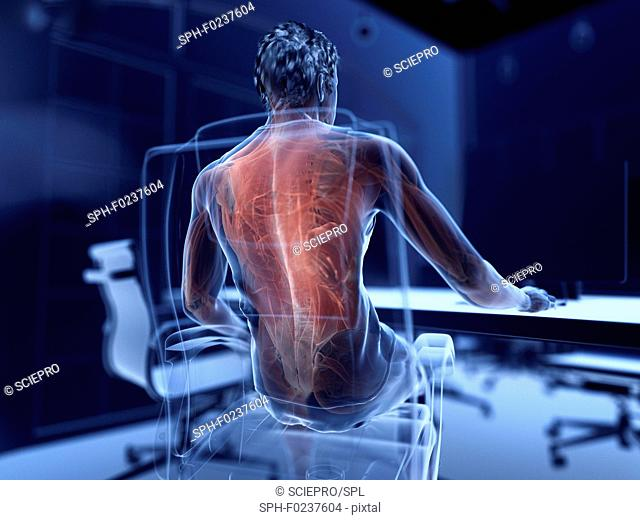 Illustration of an office worker's painful muscles