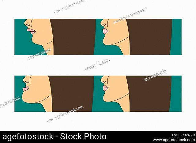 Mesial and distral bite, woman with malocclusion, lower jaw extended forward, bite correction by braces. Vector illustration