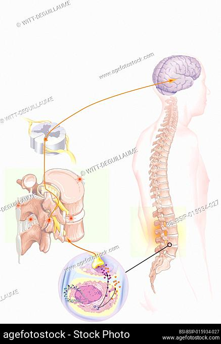 Brain and spine in situ, lumbar nociceptors, nerve impulses, treatment. Anatomical situation of lumbago on a silhouette. On the left