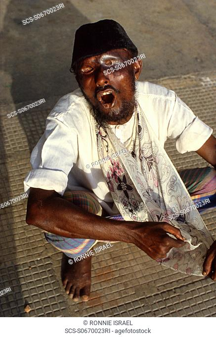 Calcutta street begger with eyes gouged out India