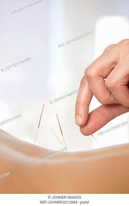 Acupuncturist applying needles
