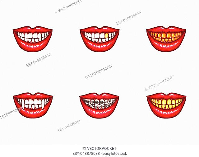 Set of vector red female lips with white healthy teeth and perfect smile, with vampire fangs, with metal dental crowns and implants, with braces