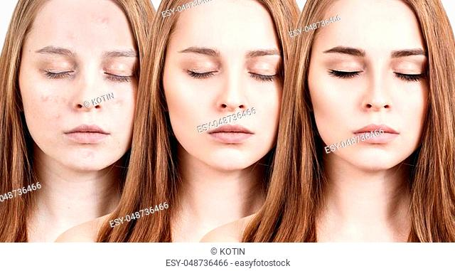 Young woman with acne applying make-up step by step. Before and after make-up