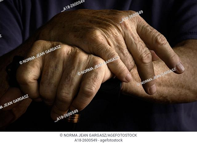 Hands of an elderly woman with chronic health and medical issues grasp a walking cane