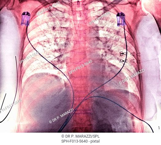 Aspiration. Coloured chest X-ray showing aspiration (dark areas) in the lungs of a 76-year-old female patient with an extensive brain haemorrhage