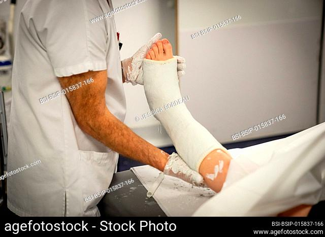 A young woman with a large ankle hematoma and a fracture is plastered. The health manager and the nurse position the foot in bending position before plastering