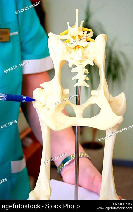 Hip dysplasia model of the dog