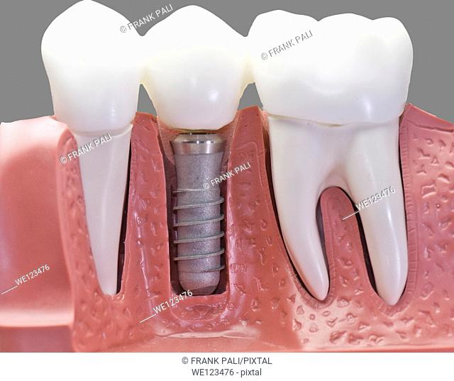This model show the teeth have been capped and the stainless pin in the gums.With 50% gray