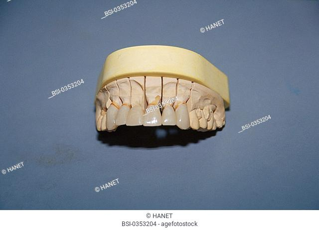 DENTAL PROSTHESIS<BR>Photo essay.<BR>Transition prosthesis in resin. Temporary prosthesis which may be replaced by the same type or by a mixed type (implant and...