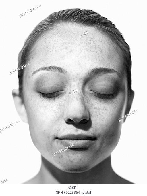 Sun damage on woman's face