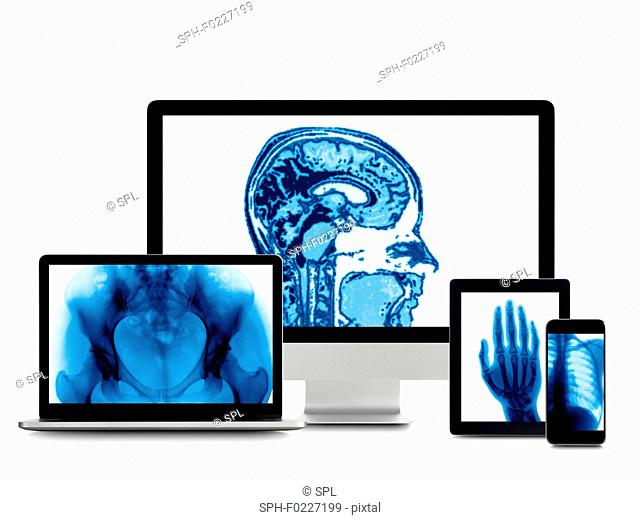 X-ray images on digital device screens