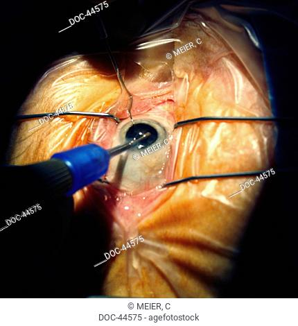 eye cataract , destruction of the with an ultrasonic sucker