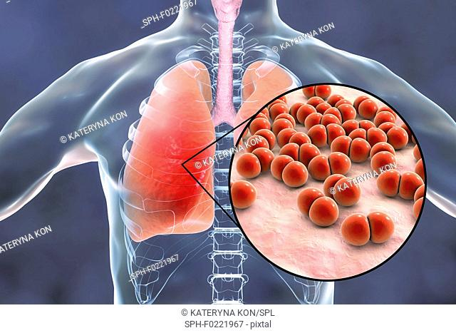 Pneumonia caused by Streptococcus pneumoniae bacteria, conce