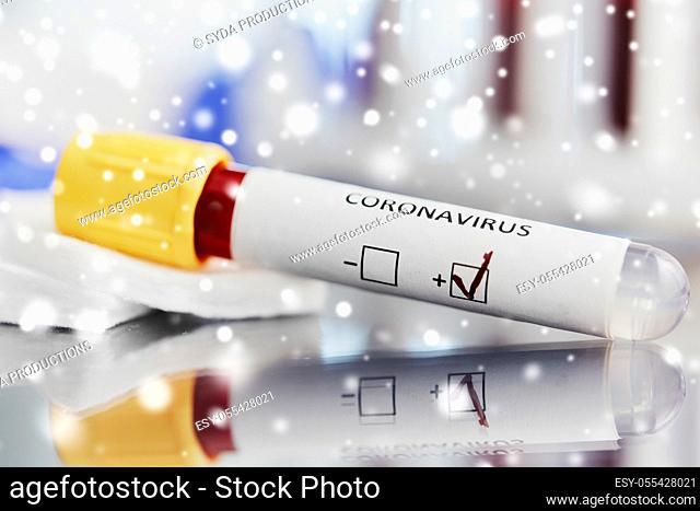 beaker with coronavirus blood test at laboratory