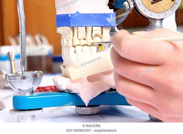 Close-up of a dentist molding prosthetic teeth