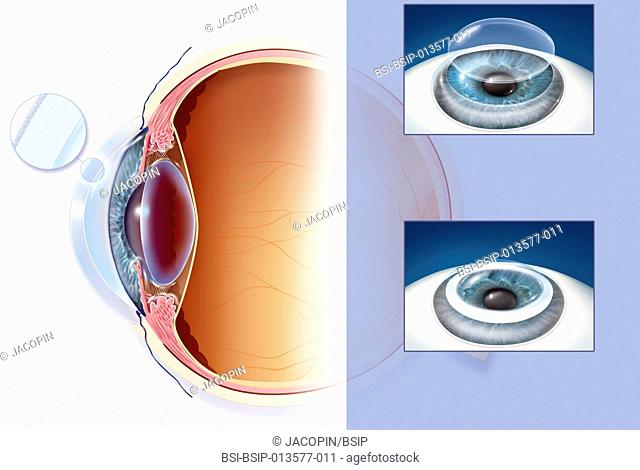 Illustration of a corneal transplant. The cornea is a fine membrane consisting of 3 layers, the epithelium, the stroma and the endothelium