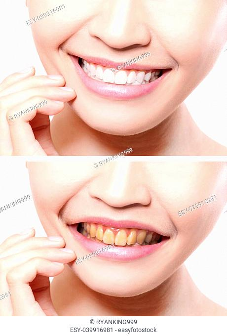 woman teeth before and after whitening. asian beauty model