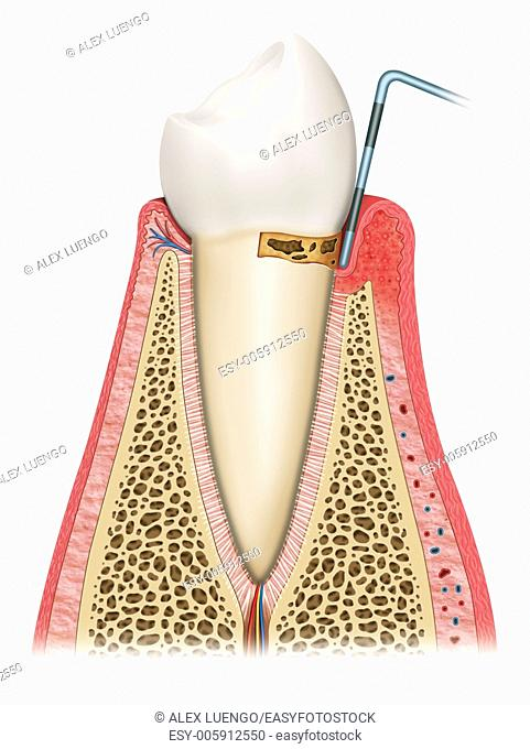 Illustration of the second phase in which the tooth is affected by gingivitis, gum looseness and swelling and bone deterioration