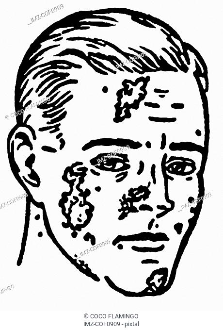 A black and white version of an illustration of an infected man