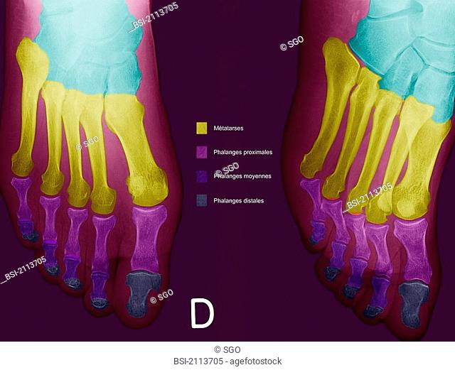FOOT, X-RAY<BR> <BR>Normal foot. Face and three quarter unwined